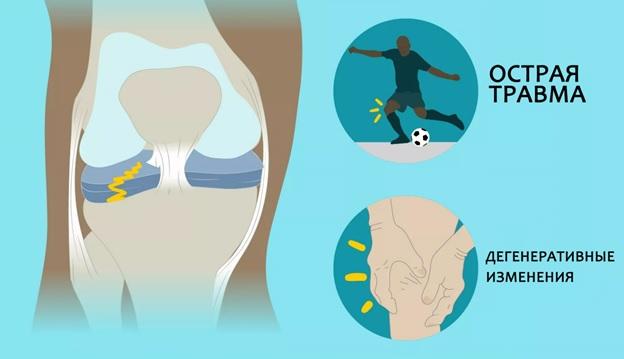 Суарес вылетел до мая из-за травмы колена. Почему он будет лечиться в два раза дольше обычного?