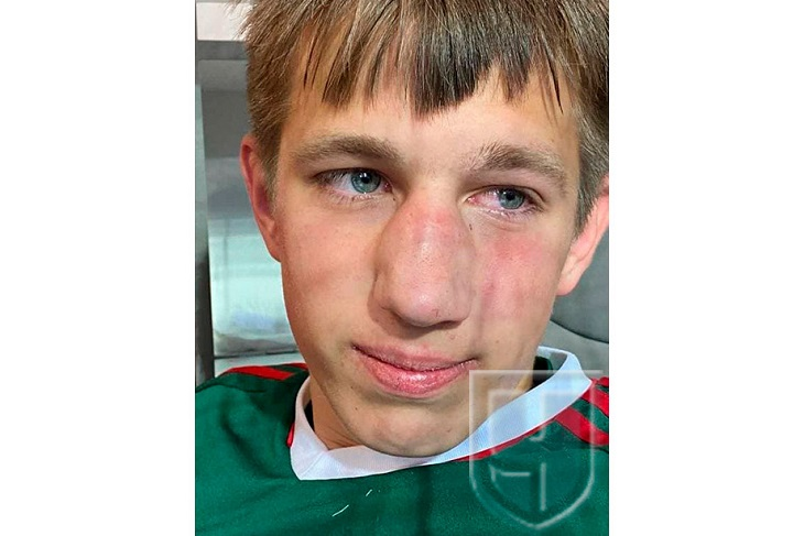 Футболисты «Чертаново» избили игрока юношеской команды «Локо». Теперь им грозит до 5 лет тюрьмы
